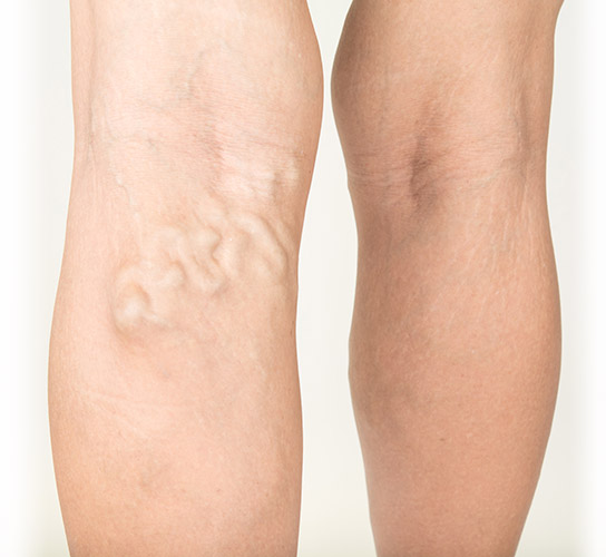 Symptoms of common varicose veins