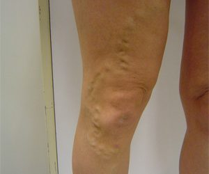 Vein treatments give mothers top results