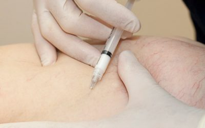 Direct Vision Sclerotherapy