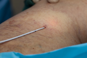 Laser and Varicose Veins