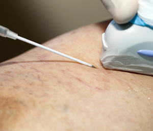 What's New In The Treatment of Varicose Veins?