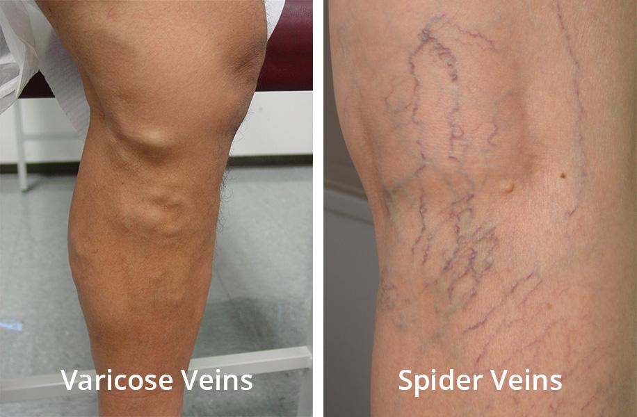 spiderveinVSvaricosevein