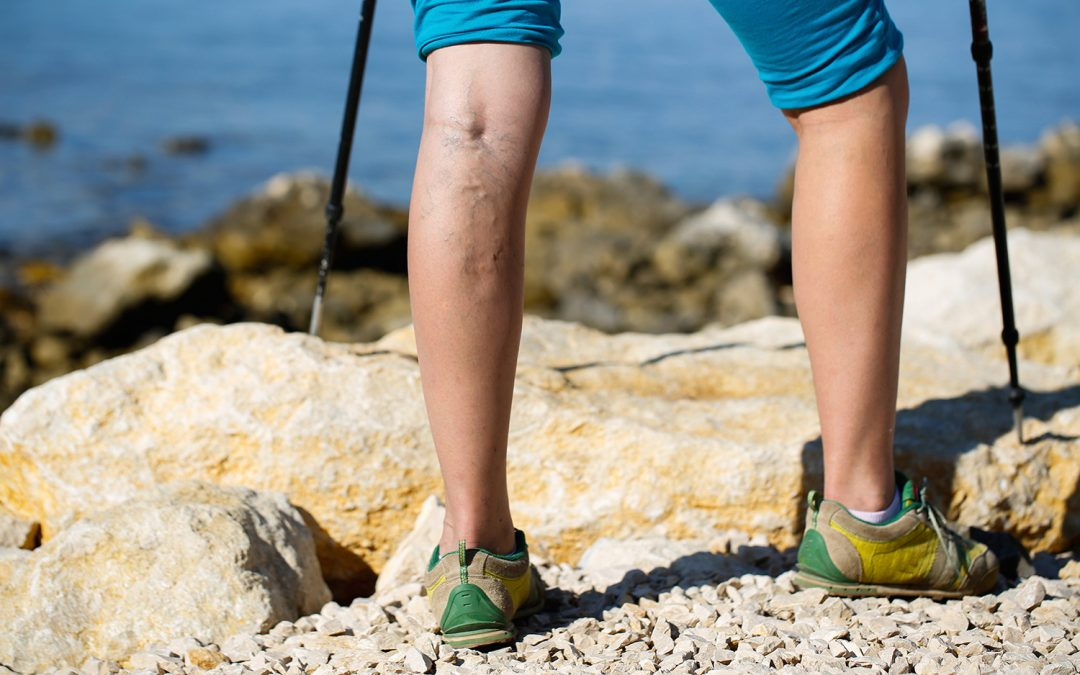 EVLA and RFA Varicose Vein Treatment Costs Explained