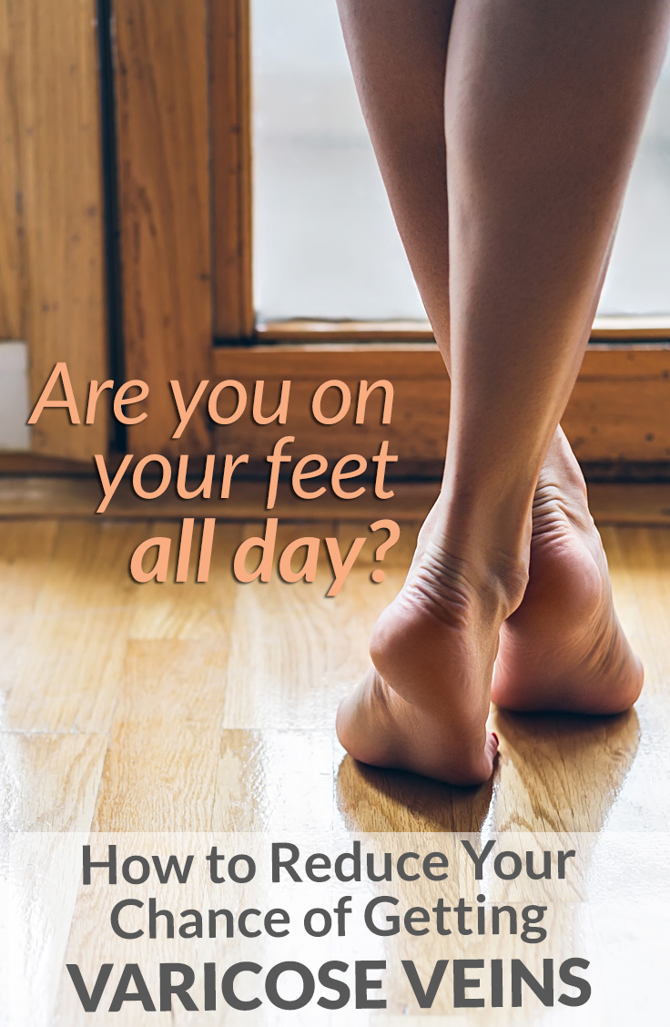 Are you on your feet all day? How to reduce your chance of getting varicose veins.