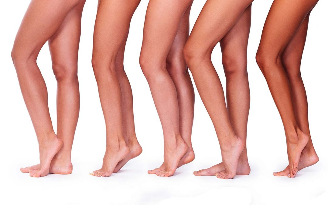 What's the Link Between Deep Vein Thrombosis (DVT) and Varicose Veins?
