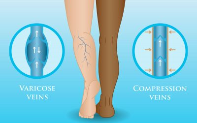 How Wearing Compression Stockings Can Help Your Varicose Veins