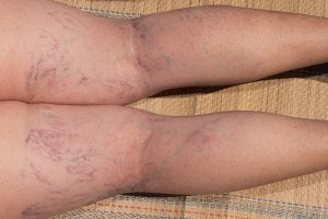 All About Spider Veins: What are they? Causes? Common questions.