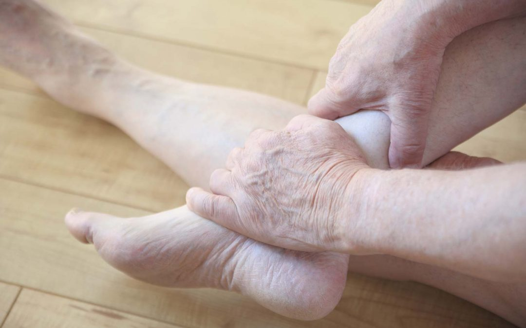 Venous Ulcers: Untreated Varicose Vein Complications