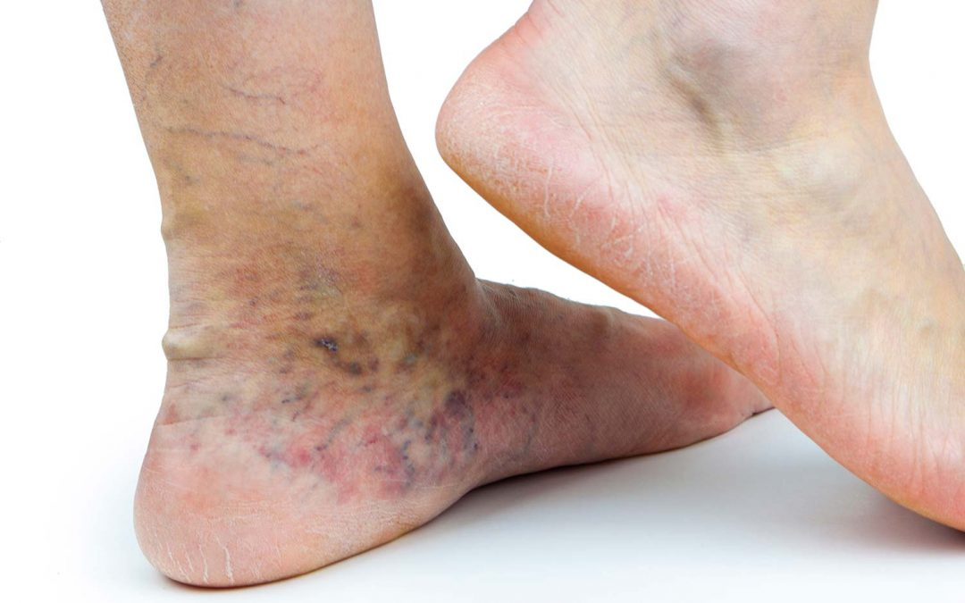 Venous Dermatitis: Untreated Varicose Vein Complications