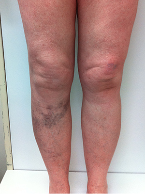 Ultrasound Guided Sclerotherapy Varicose Vein Treatment
