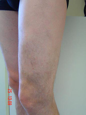 VenaSeal Vein Glue - Varicose Veins Treatment | Vein Health