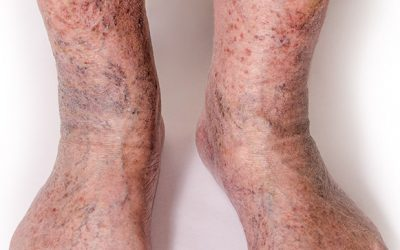 Severe Varicose Veins / Chronic Venous Disease