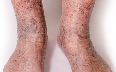 Severe Varicose Veins / Chronic Venous Disease