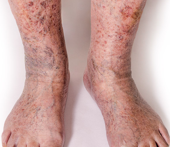 Symptoms of severe varicose veins and chronic veinous disease