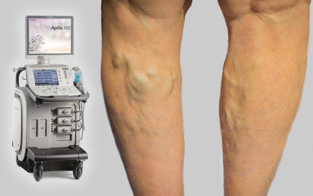 Latest Ultrasound Technology now at Vein Health Medical Clinic