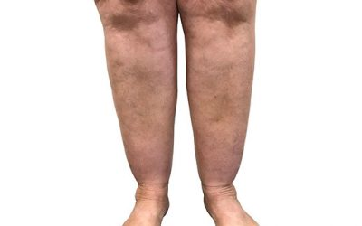 Lipoedema and Varicose Veins