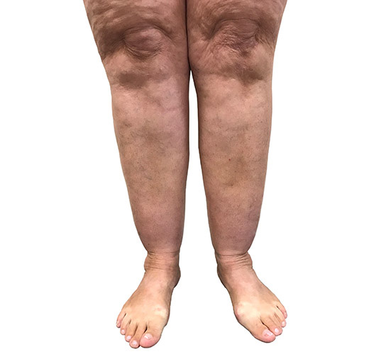 Connection between varicose veins and Lipoedema