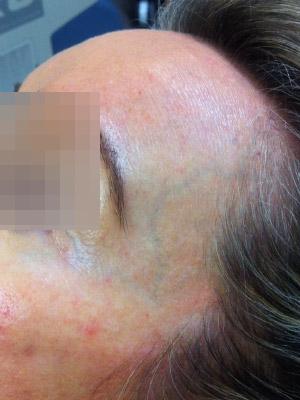 Periorbital Vein Treatment | Vein Health Clinic Melbourne