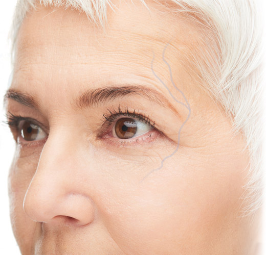 Periorbital veins - large blue vein around eye socket