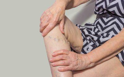 Can Varicose Veins Bleed Externally?