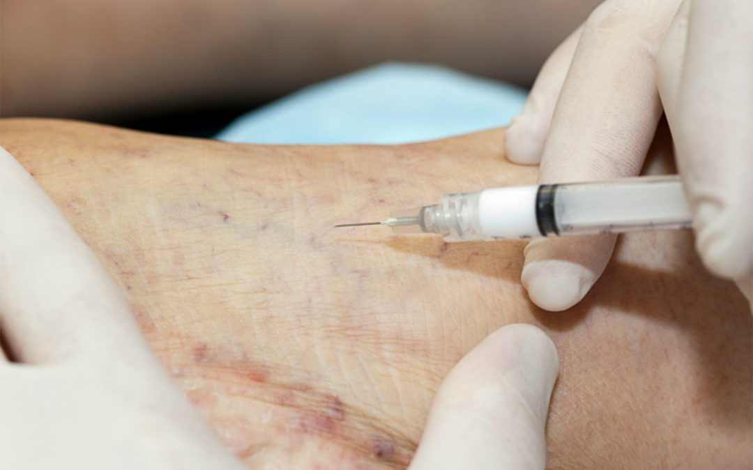 Sclerotherapy: What is Sclerosant and Why Does it Work On Varicose Veins?