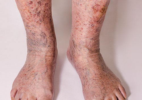 Foot displaying chronic venous disease from severe varicose veins