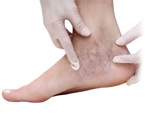 Foot showing symptoms of spider veins and varicose veins