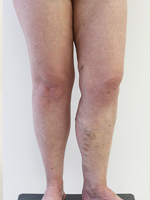Case Study: 42-year-old Woman with Large Varicose Veins - Vein Health  Clinic Melbourne
