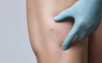 Will spider veins go away?