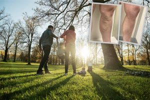 Experiencing varicose veins and getting treatment