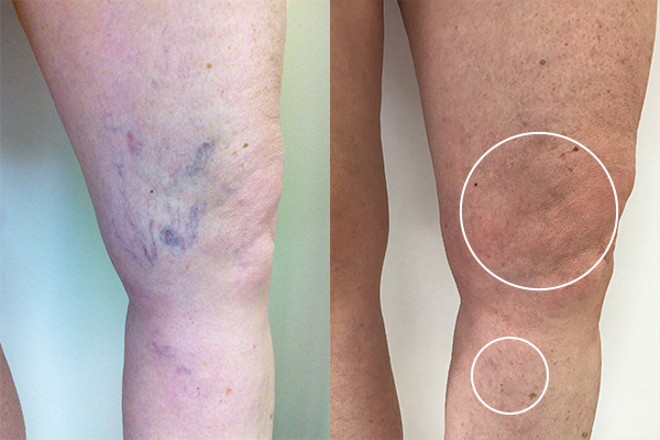 Side by side images of before and after sclerotherapy with hyperpigmentation circled on the after photo