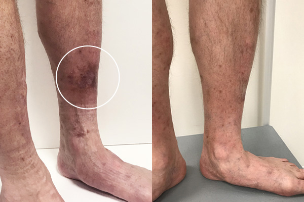 Before and after pictures of legs with severe hyperpigementation and after without
