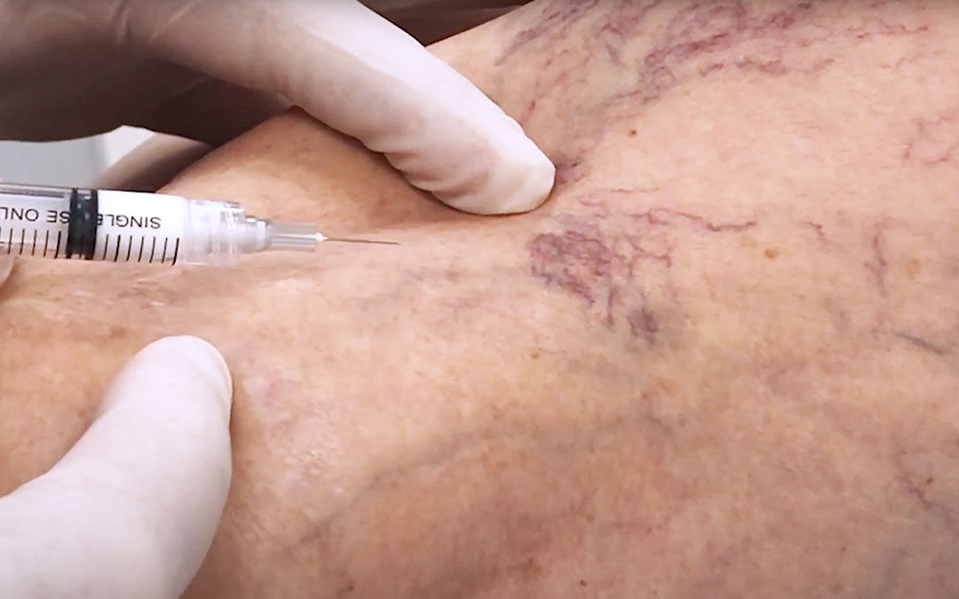 Sclerotherapy syringe about to inject back of leg covered in varicose veins and spider veins