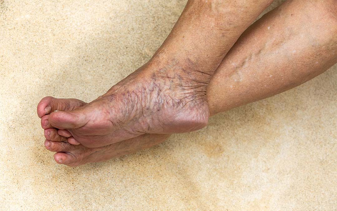 Bare feet crossed at ankles, with extensive varicose veins on feet and ankles