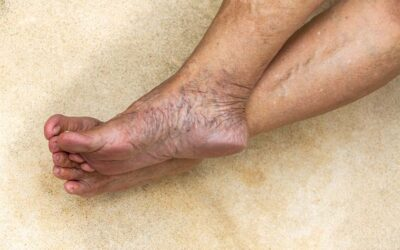 Are ankle and foot veins linked to deeper vein problems?