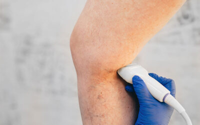How to get the best treatment for varicose veins