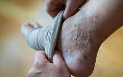 Relieving varicose vein pain