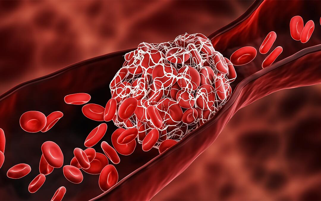 Diagram of a blood clot in a vein