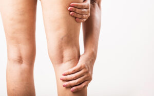 Poor circulation in the legs: the cause of varicose veins?