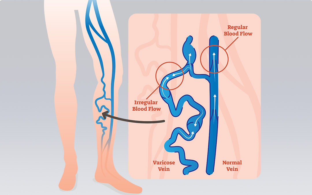 Diagram showing backflow of blood in leg veins, and cross section of what's happening inside the veins.